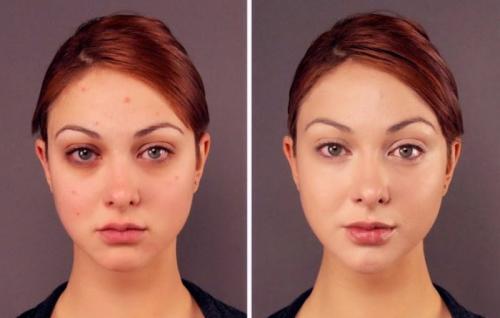 Как избавиться от хронических синяков под глазами. Почему появляются синяки под глазами
